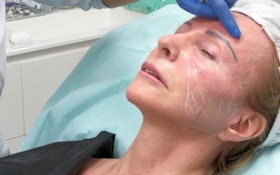 Ringiovanimento viso ed effetto naturale. Guarda i risultati delle mie pazienti